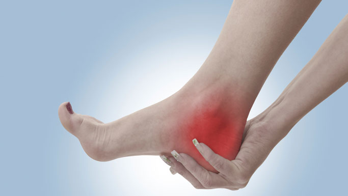 Oakland Chiropractic Treatment for Plantar Fasciitis